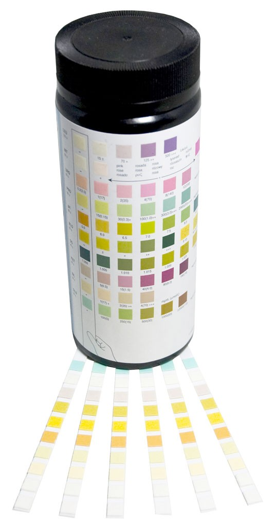 mission urinalysis reagent strips how to read